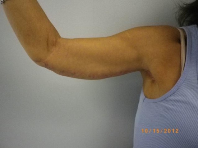 Arm Lift 2 After