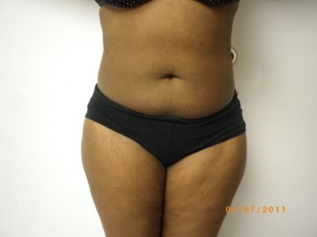 Female Belly Liposuction After