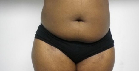 Female Belly Liposuction Before