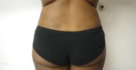 Female Waist Liposuction After
