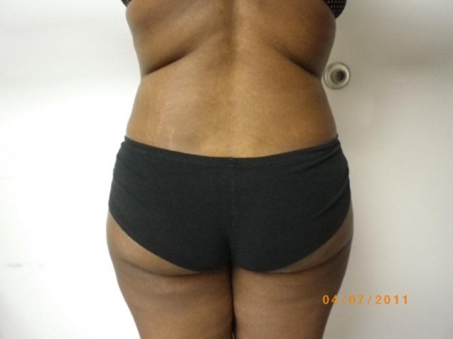 Female Waist Liposuction After