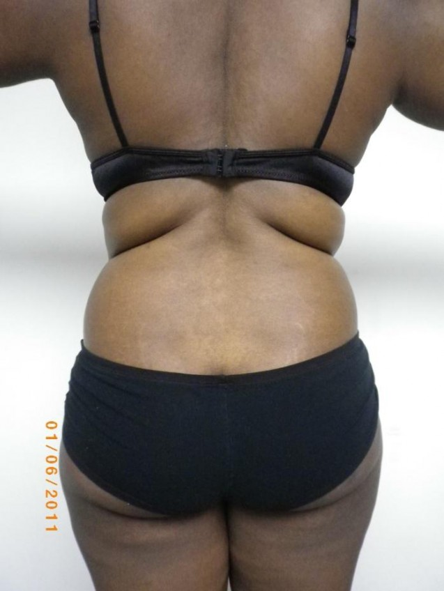 Female Waist Liposuction Before