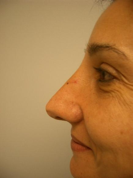 Nose Surgery 2 After