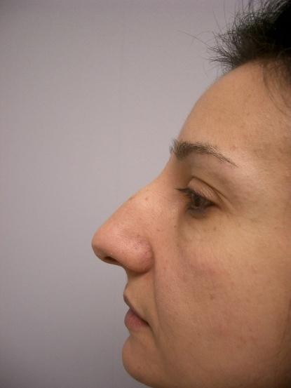Nose Surgery 2 Before