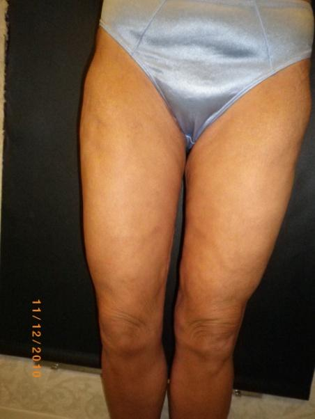 Thigh Lift After