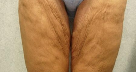 Thigh Lift Before