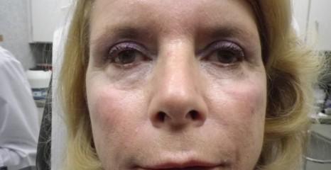 Dermal Filler Treatment After