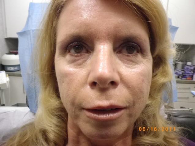Dermal Filler Treatment Before